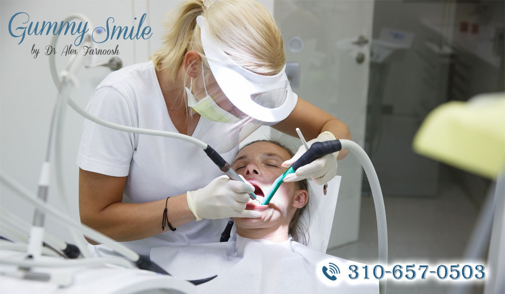 Go for Gummy Smile Correction in Los Angeles